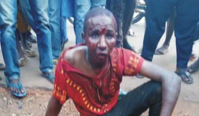 Fulani Herdsman Cuts-off Farmer's Hand And Ear In Kogi State (Graphic)